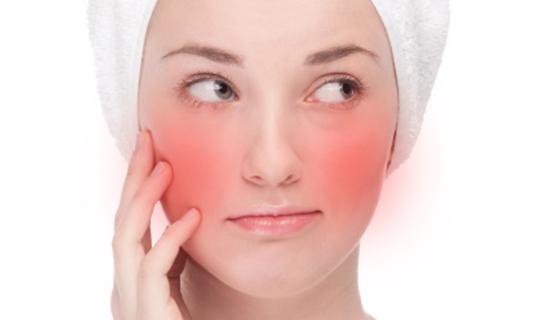 SKin Concerns Face Redness