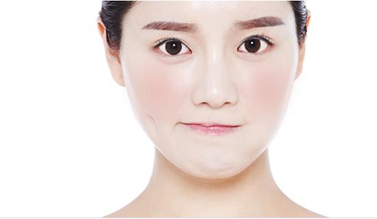 SKin Concerns Brighten Face