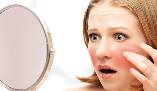 SKin Concerns Red Spot or Blood Vessels on Face