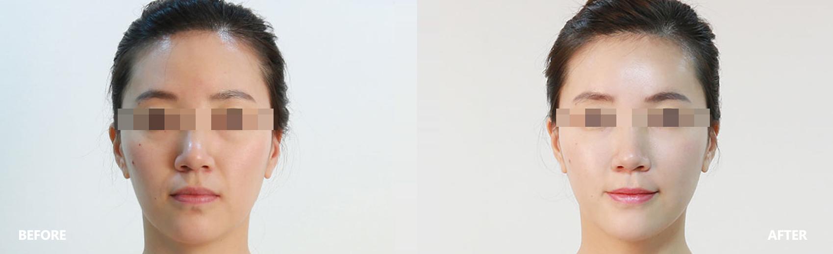 dry-result-banner-1