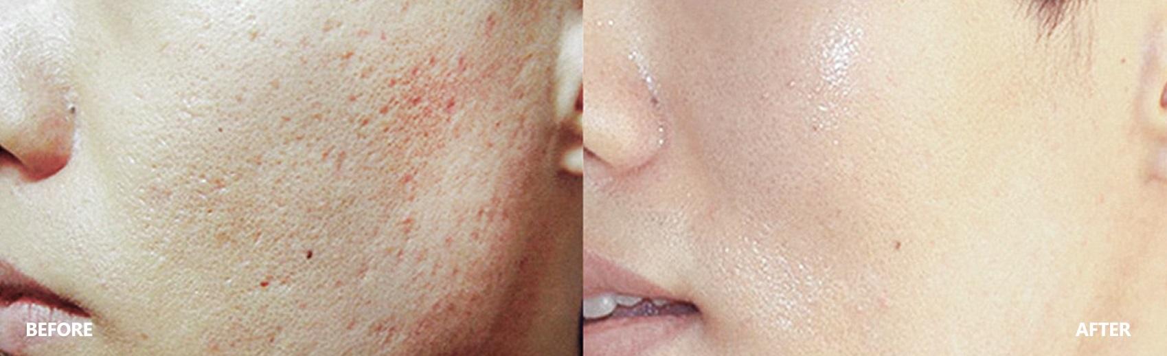 pore-result-banner-3