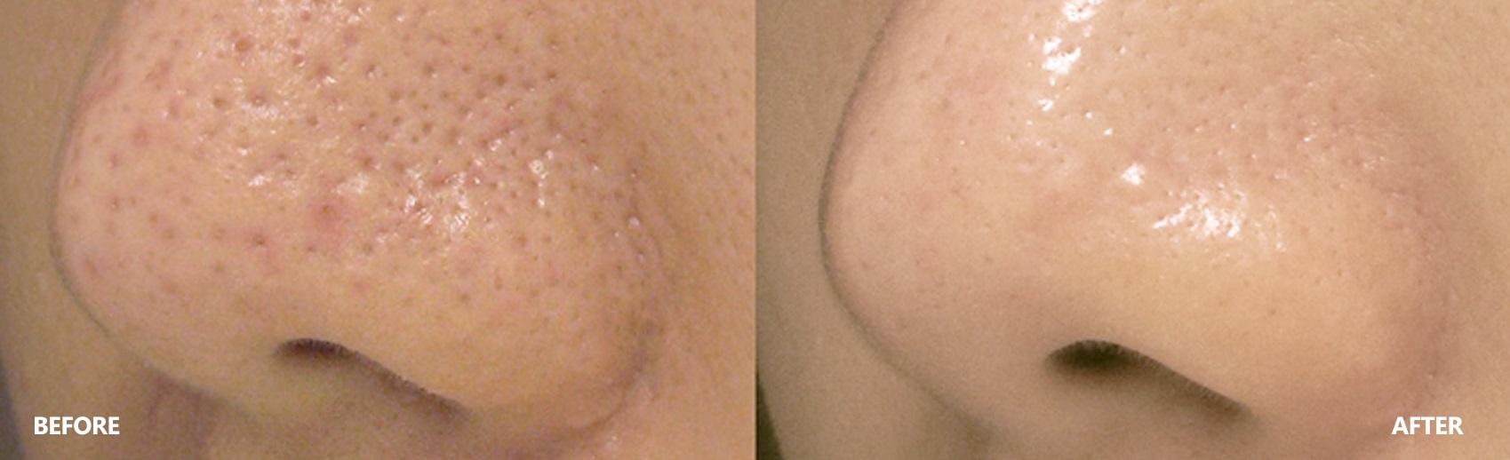 pore-result-banner-4