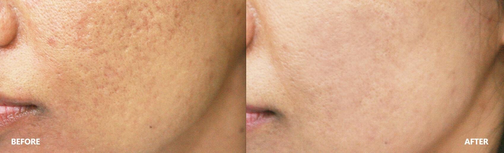 scar-result-1