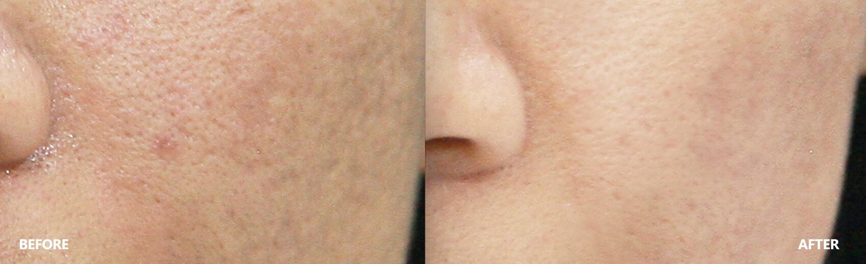 scar-result-2