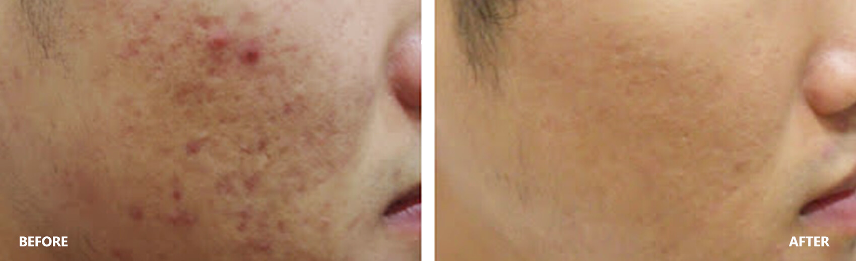 scar-result-3