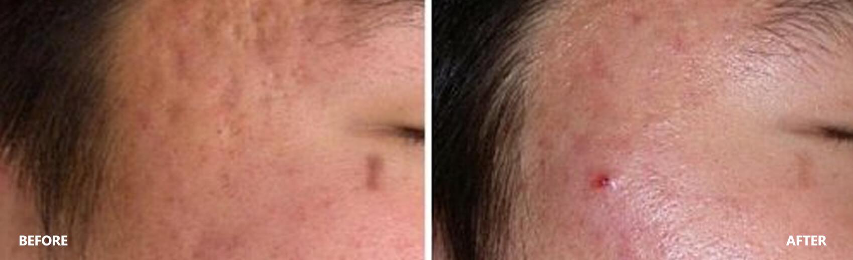 scar-result-4