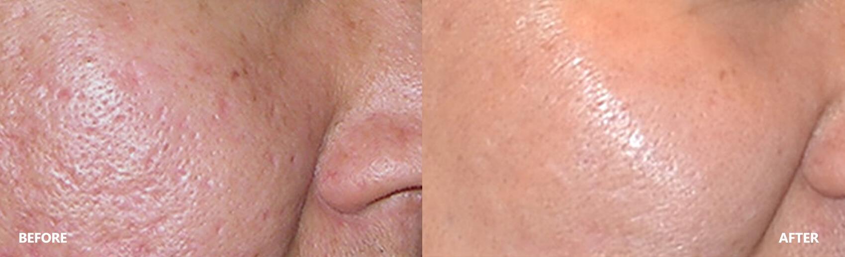 scar-result-5