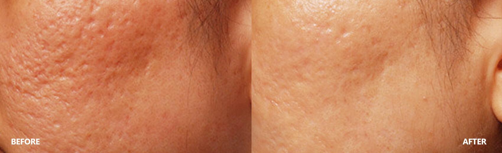 scar-result-6