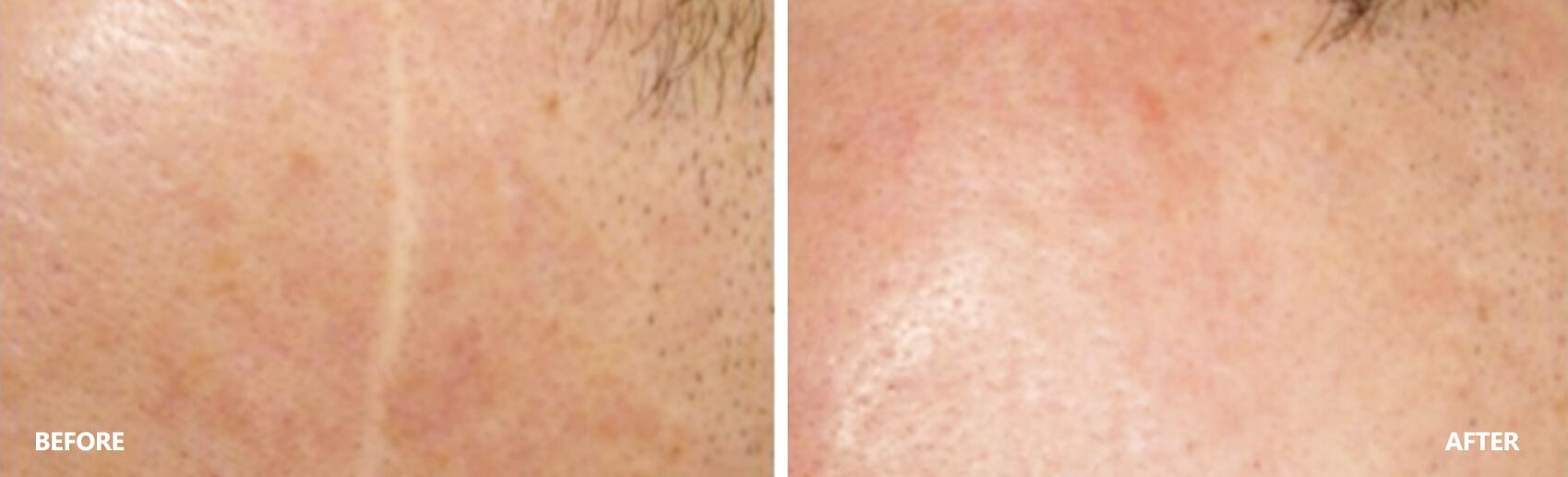 scar-result-8