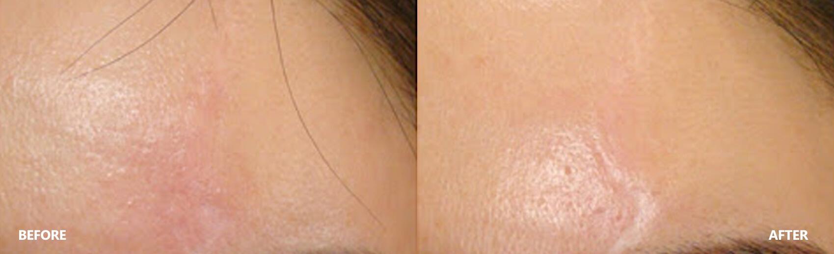 scar-result-9