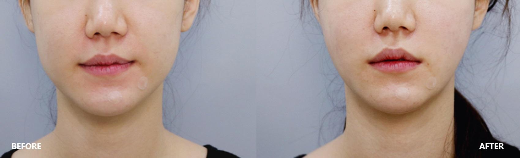 skin-lifting-result
