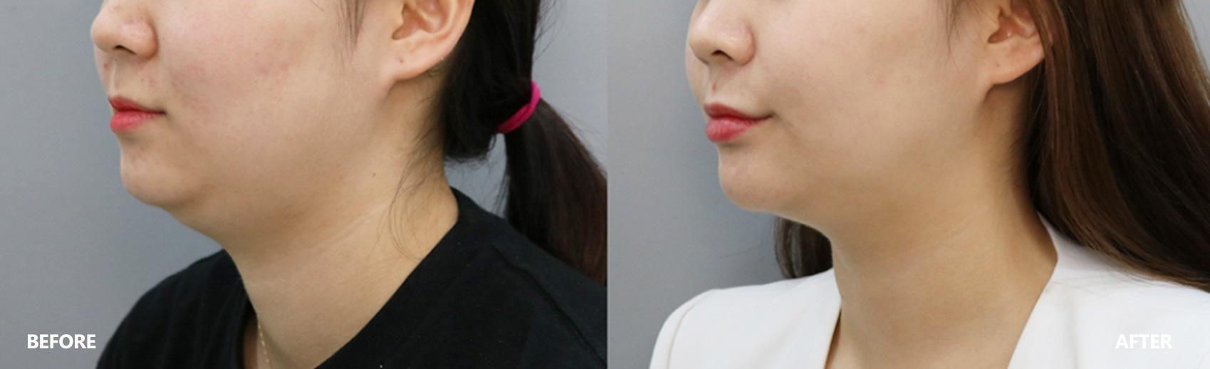 skin-lifting-result-2