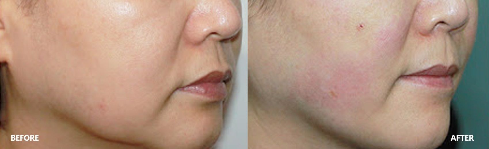 skin-lifting-result-4