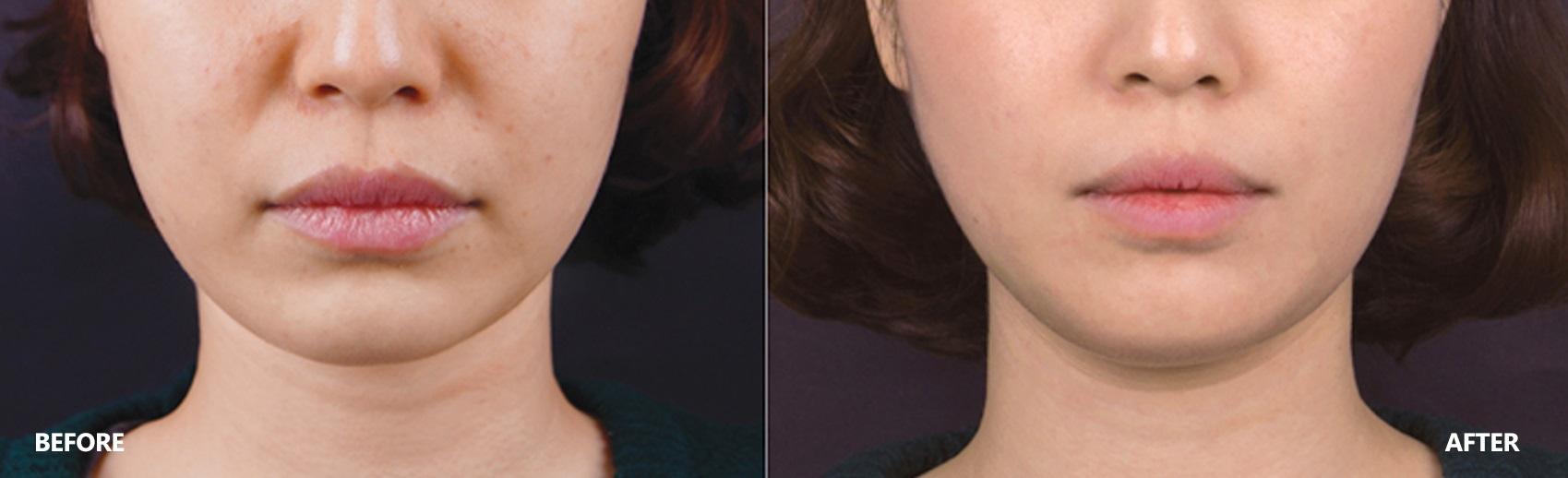 skin-lifting-result-5