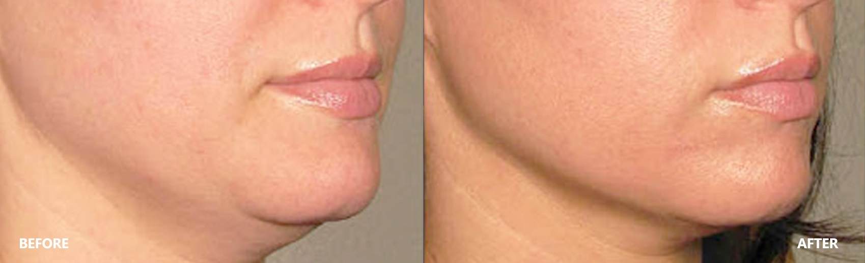 skin-lifting-result-6