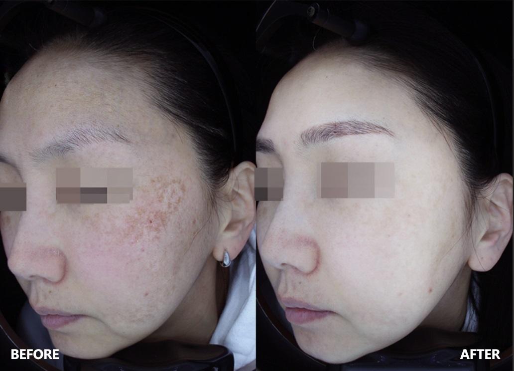 skin-result-1