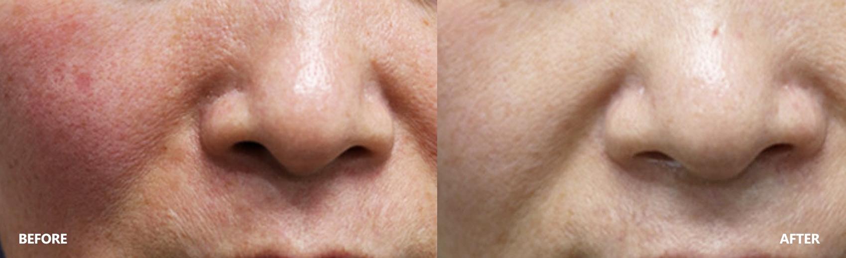 skin-result-2
