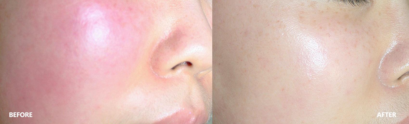 skin-result-3
