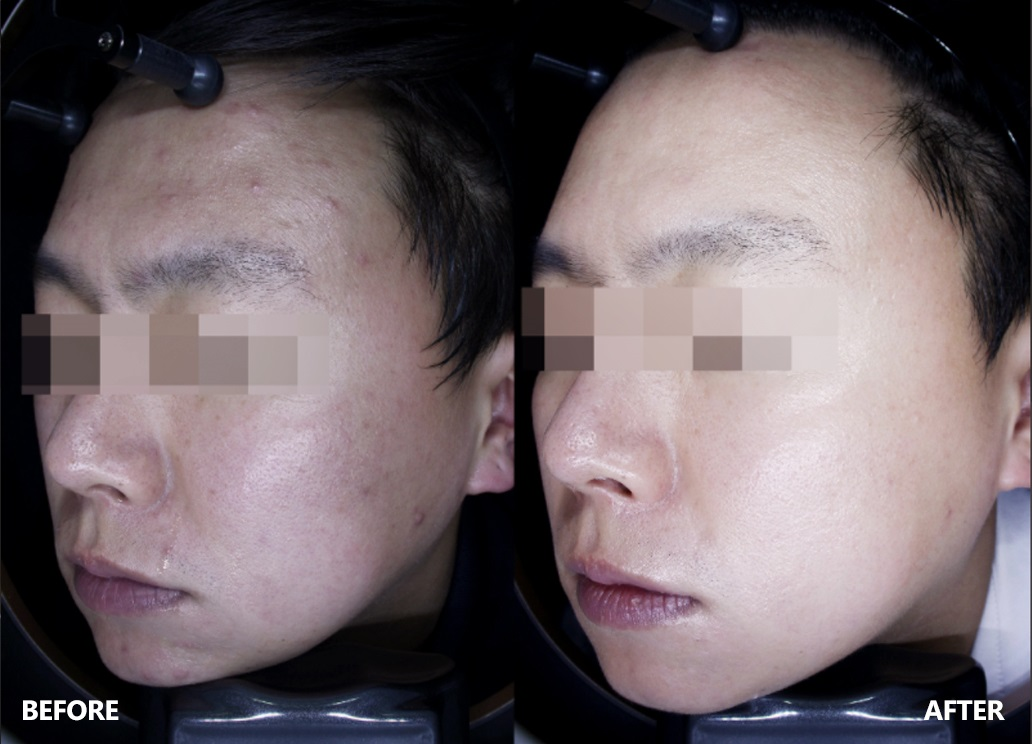 skin-result-4