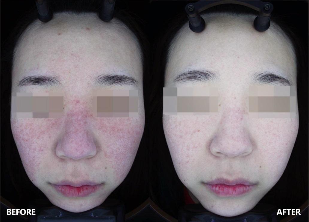 skin-result-5