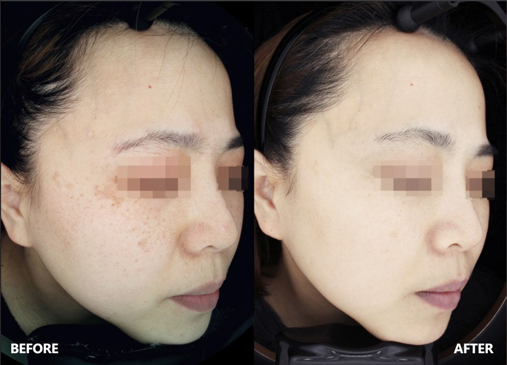 skin-result-6