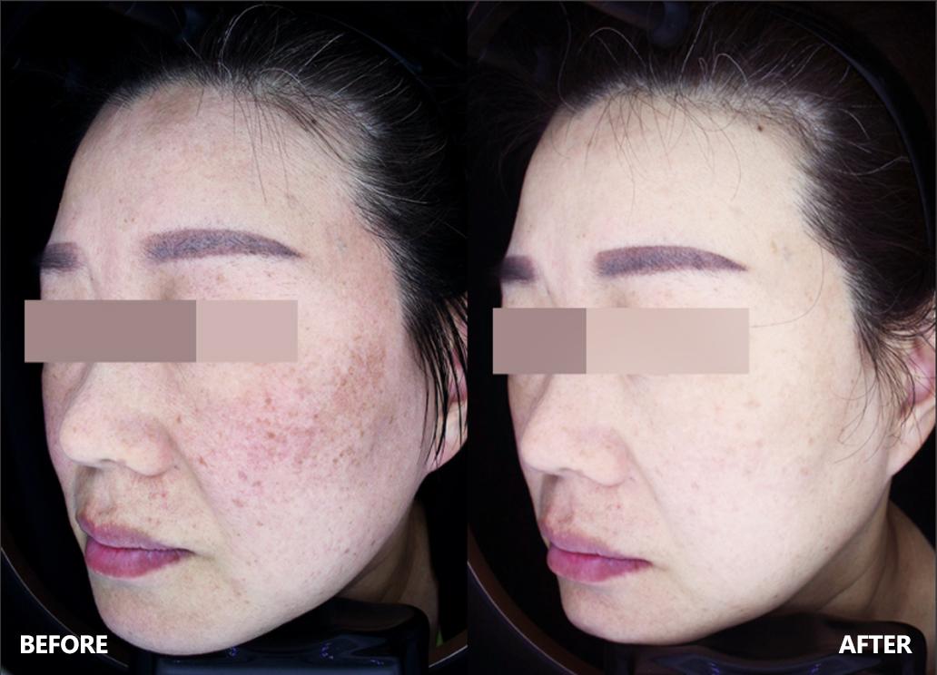 skin-result-7