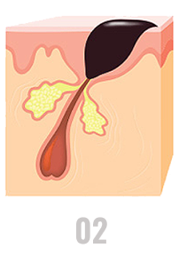 Oil and skin cells plug pores, forming pimples