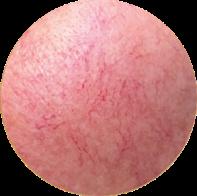 Skin Redness