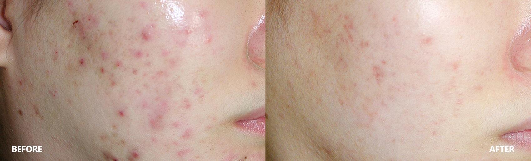 Acne Skin Result Before & After